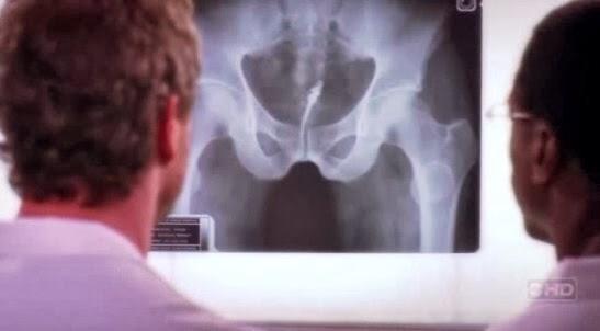 カンディルが体内に入ったレントゲン